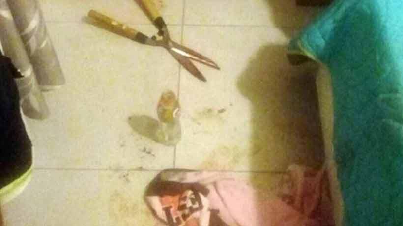 El hombre que fue mutilado con una tijera de podar en Argentina quedó estéril